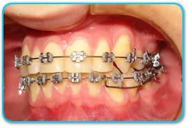 img1_ortodontia
