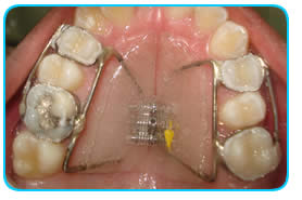 img2_ortodontia