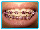 ortodontia3
