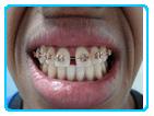 ortodontia4